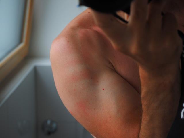 sunburn-2117350_960_720.jpg